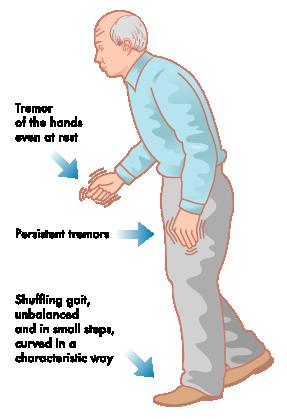 Parkinsons Symptoms