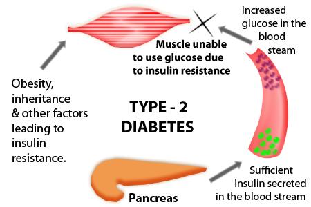 Type 2 Diabetes Causes