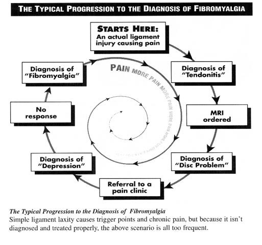 Fibromyalgia Diagnosis
