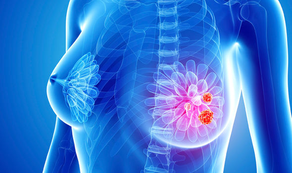 Breast Cancer Center